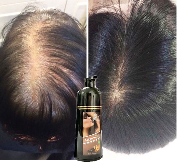 dau-goi-phu-bac-sin-hair-review